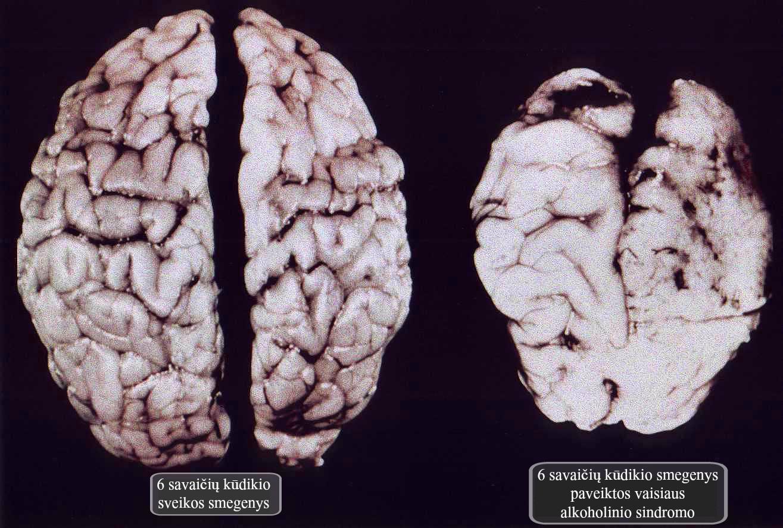 smegenys ulgovo str.